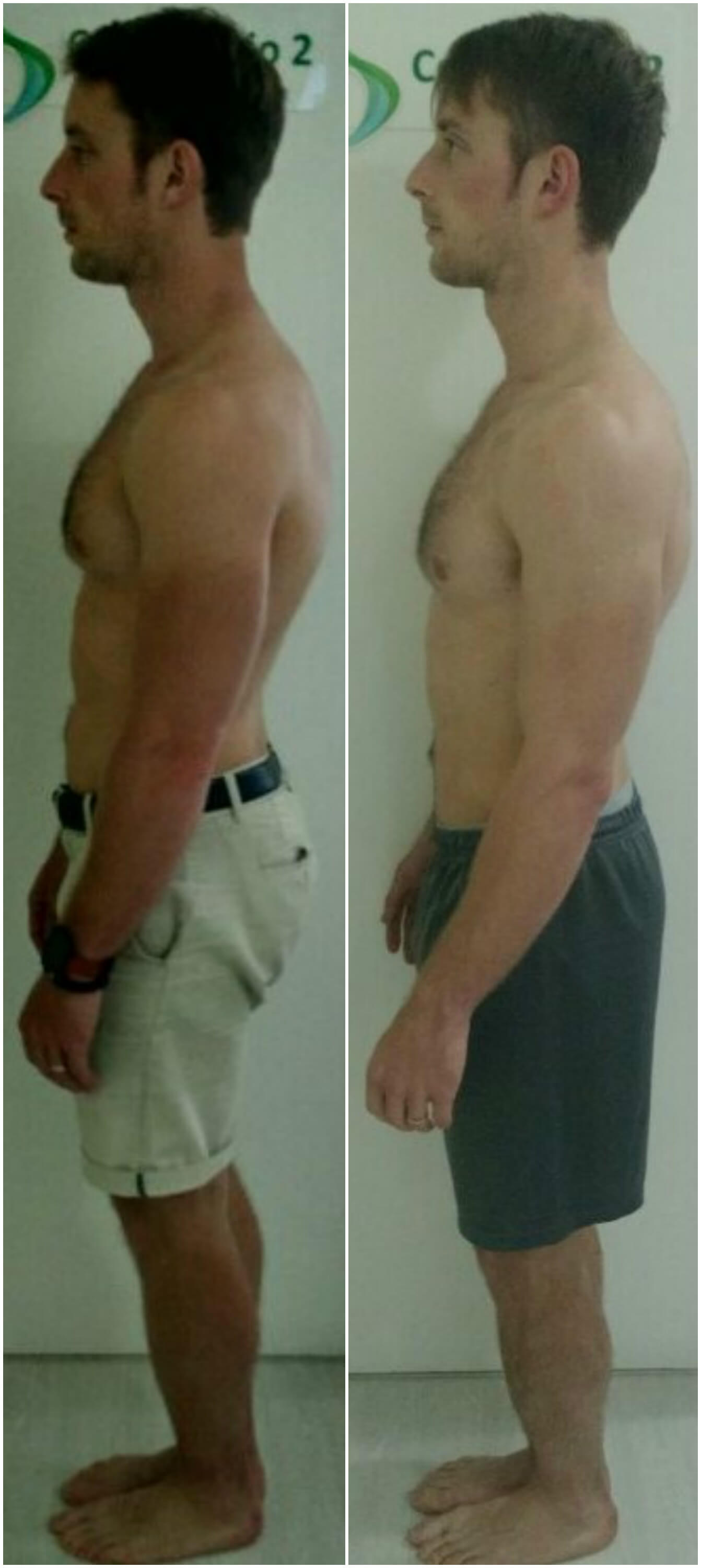 rounded shoulders before after posture